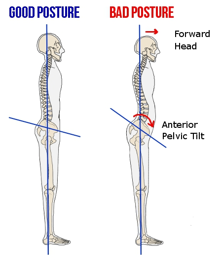 posture skeleton good bad pelvic tilt